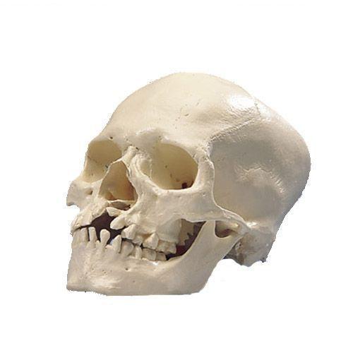 Schädel mit Kiefer- und Gaumenspalte A29/3
