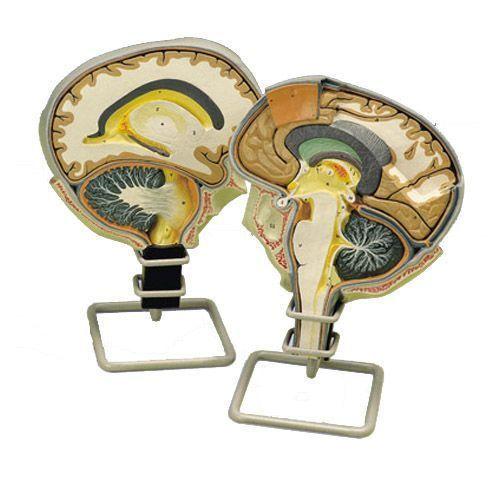 Gehirnschnitt W19026