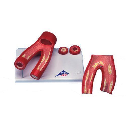 Arteriosklerose Modell, mit Querschnitt der Arterie, 2-teilig G40