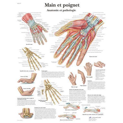 Lehrtafel - Hand und Handgelenk - Anatomie und Pathologie VR2171L
