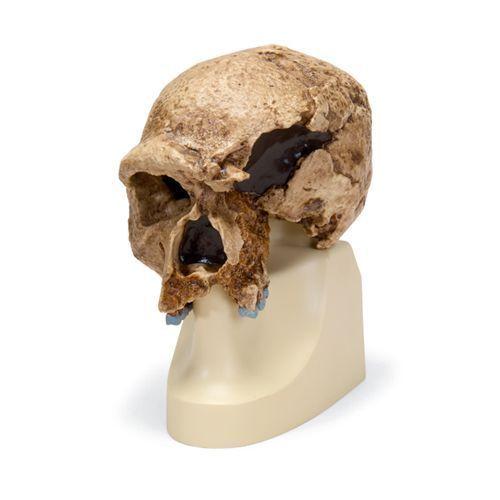Homo sapiens steinheimensis- Steinheim VP753/1