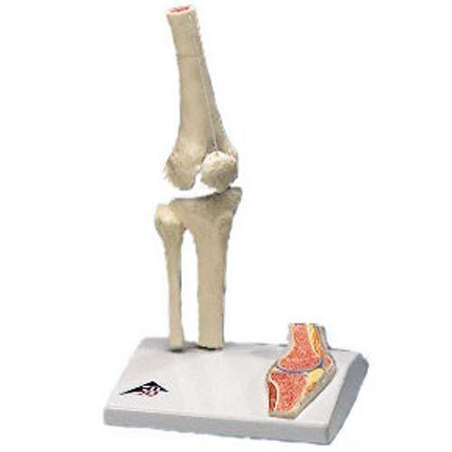 Mini-Kniegelenk mit Querschnitt A85/1