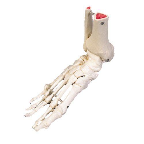 Fußskelett mit Schienbein- und Wadenbeinstumpf, auf Draht gezogen, rechts  A31R