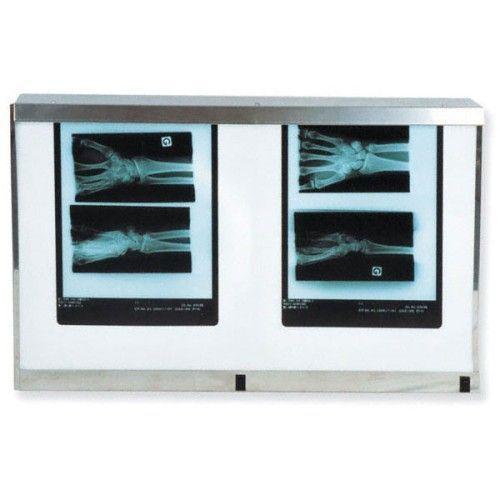 Double Panel Standard X-Ray-Viewer mit Schalter, 54W