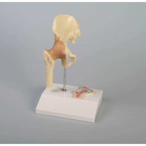 Miniatur Hüftgelenk mit Querschnitt Erler Zimmer