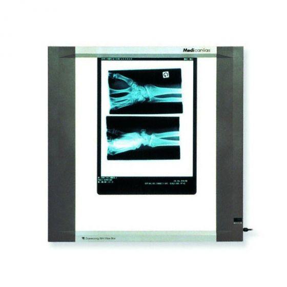 Single Panel Röntgenfilmbetrachter (22W)